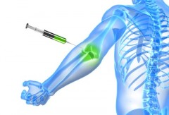 Viscosupplementation Helps in the Treatment of Arthritis