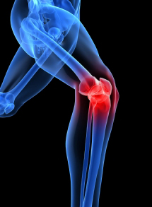 Prolotherapy treatment for pain relief in Bridgewater, NJ